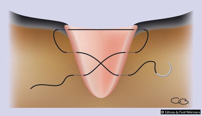 FIGUREReprésentation de la suture en 8 ou en lacet de bottine