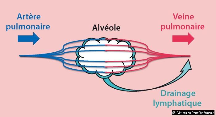 FIGURE 3Éthiopathogénie des œdèmes pulmonaires