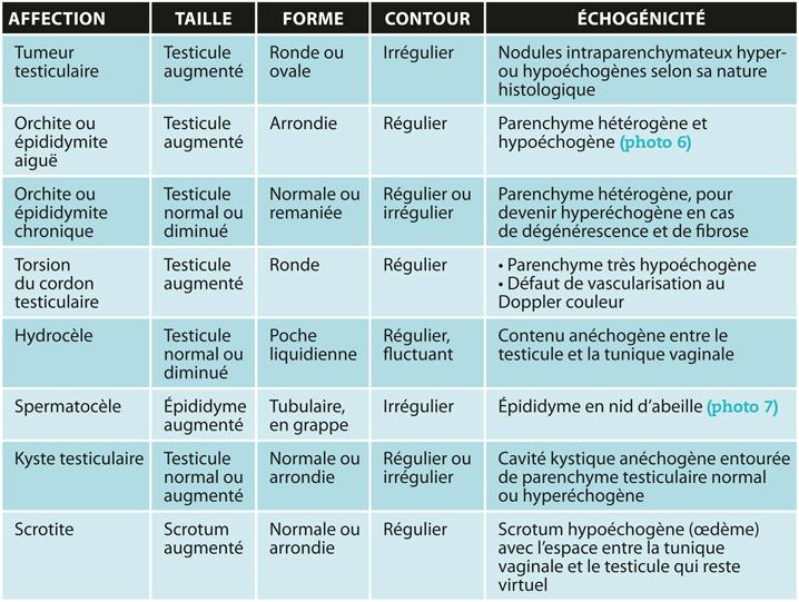 TABLEAUCaractéristiques de l'examen échographique en fonction de l'affection testiculaire