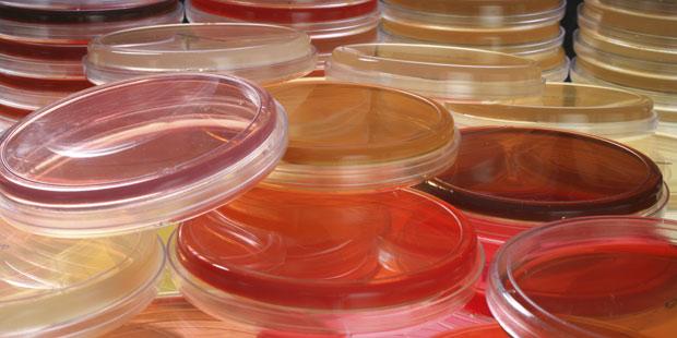 analyse bactérienne sur boite de pétri
