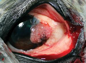 Carcinome épidermoïde chevauchant le limbe et s'étendant à la cornée et à la conjonctive bulbaire voisine. La lésion est compacte avec une surface pavimenteuse.