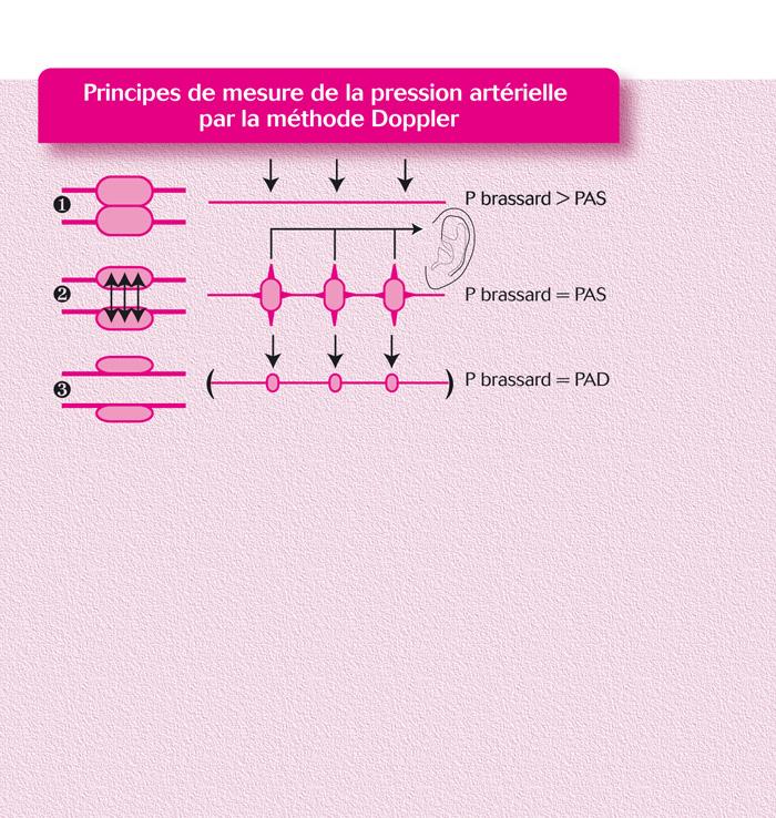 Mesure de la pression artérielle par la méthode Doppler..