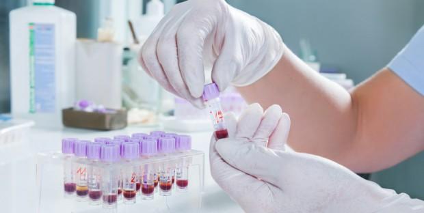 Analyse de laboratoire