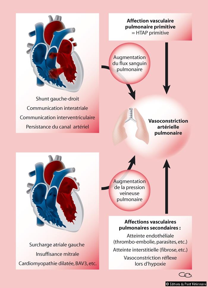 FIGURE 4Étiologie de l'hypertension artérielle pulmonaire