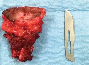 Aspect du sinus dermoïde après la résection chirurgicale complète.