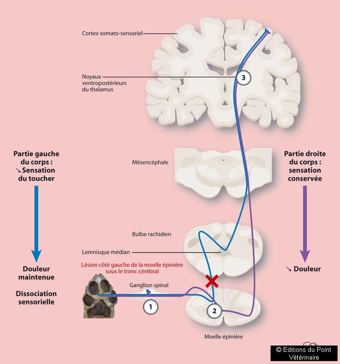 FIGURE 3Dissociation sensorielle en cas d'atteinte du système nerveux