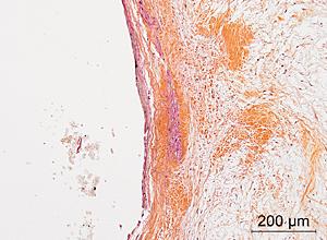 Infiltration de GAG dans la couche fibreuse