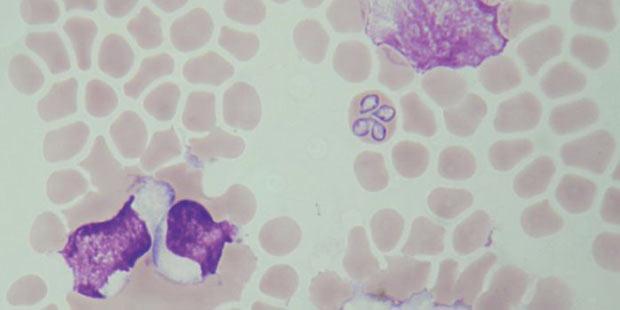 piroplasmes sur un frottis sanguin