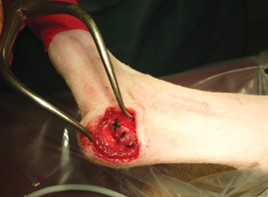 Sutures simples interrompues du rétinacle médial et du tendon. Fin de la suture.
